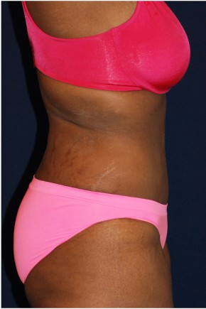 After Photo - Tummy Tuck - Case #14053 - Abdominoplasty - Lateral View