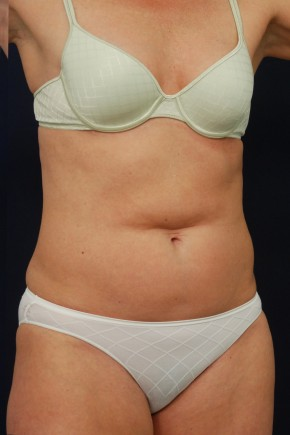 Before Photo - Tummy Tuck - Case #14054 - Mini-Abdominoplasty - Oblique View