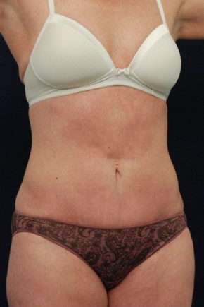After Photo - Tummy Tuck - Case #14054 - Mini-Abdominoplasty - Oblique View
