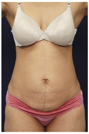 Before Photo - Tummy Tuck - Case #14056 - Abdominoplasty - Frontal View