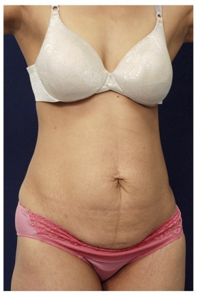 Before Photo - Tummy Tuck - Case #14056 - Abdominoplasty - Oblique View