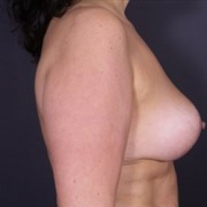 After Photo - Breast Lift - Case #14059 - Bilateral Vertical Breast Lift - Lateral View