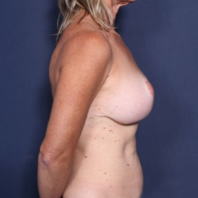 After Photo - Breast Revision - Case #14061 - 52 years old female  - Lateral View