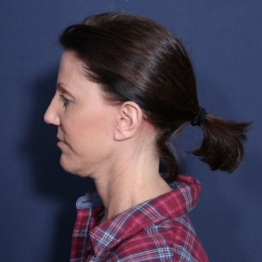 After Photo - Facelift - Case #14063 - 55 years old female - Lateral View