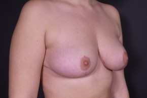 After Photo - Breast Lift - Case #14071 - Mastopexy with Reduction - Oblique View