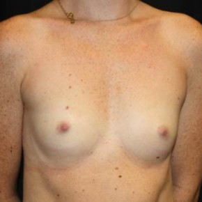 Before Photo - Breast Augmentation - Case #14086 - Breast Augmentation - 26 year old female - Oblique View