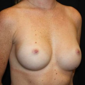 After Photo - Breast Augmentation - Case #14086 - Breast Augmentation - 26 year old female - Oblique View
