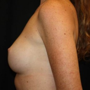 After Photo - Breast Augmentation - Case #14086 - Breast Augmentation - 26 year old female - Lateral View