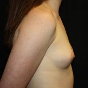 Before Photo - Breast Augmentation - Case #14087 - Breast Augmentation - 23 year old female - Lateral View