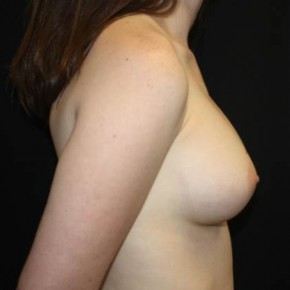 After Photo - Breast Augmentation - Case #14087 - Breast Augmentation - 23 year old female - Lateral View