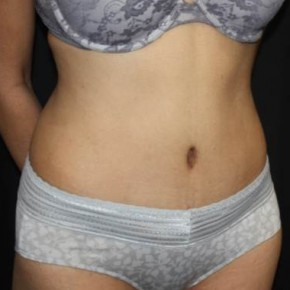 After Photo - Tummy Tuck - Case #14088 - Abdominoplasty - 39 year old female - Oblique View