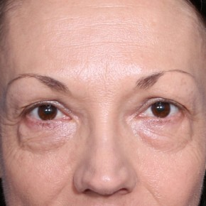 Before Photo - Eyelid Surgery - Case #14091 - 50 Years old female - Frontal View
