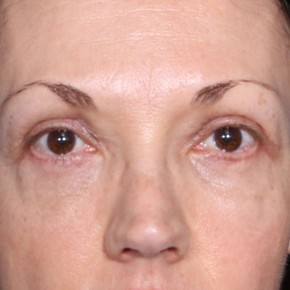 After Photo - Eyelid Surgery - Case #14091 - 50 Years old female - Frontal View