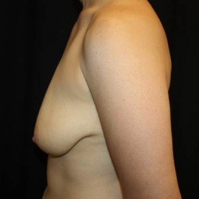 Before Photo - Breast Lift - Case #14090 - Breast lift with breast implants - 28 year old female - Lateral View