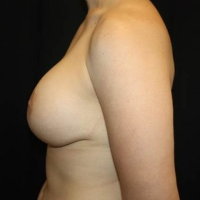 After Photo - Breast Lift - Case #14090 - Breast lift with breast implants - 28 year old female - Lateral View