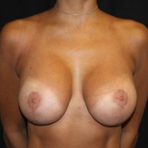 After Photo - Breast Lift - Case #14092 - Breast lift with breast implants - 28 year old female - Frontal View