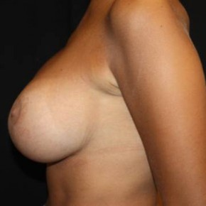 After Photo - Breast Lift - Case #14092 - Breast lift with breast implants - 28 year old female - Lateral View