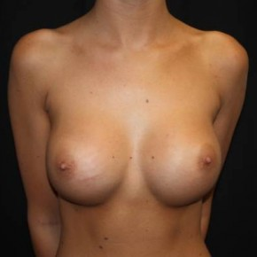 After Photo - Breast Augmentation - Case #14093 - Breast Augmentation - 23 year old female - Frontal View