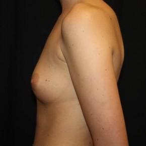 Before Photo - Breast Augmentation - Case #14093 - Breast Augmentation - 23 year old female - Lateral View