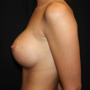 After Photo - Breast Augmentation - Case #14093 - Breast Augmentation - 23 year old female - Lateral View