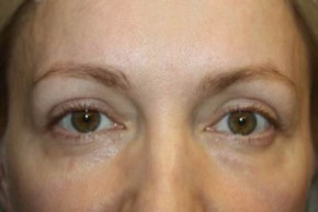 After Photo - Eyelid Surgery - Case #14094 - Blepharoplasty - Upper Lids Only - 46 year old female - Frontal View