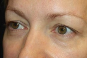 Before Photo - Eyelid Surgery - Case #14094 - Blepharoplasty - Upper Lids Only - 46 year old female - Oblique View