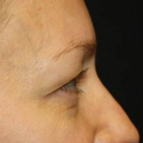Before Photo - Eyelid Surgery - Case #14094 - Blepharoplasty - Upper Lids Only - 46 year old female - Lateral View