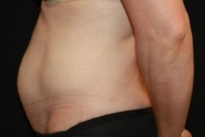 Before Photo - Tummy Tuck - Case #14095 - Abdominoplasty - 47 year old female - Lateral View