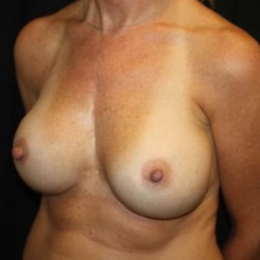 After Photo - Breast Revision - Case #14102 - Breast Implant Exchange - 44 year old female. - Oblique View