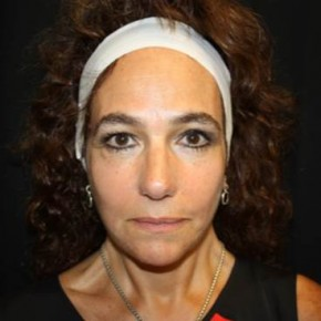 After Photo - Facial Rejuvenation - Case #14103 - Facelift and Neck Lift - 58 year old female - Frontal View