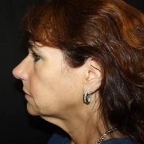 Before Photo - Facial Rejuvenation - Case #14103 - Facelift and Neck Lift - 58 year old female - Lateral View