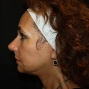 After Photo - Facial Rejuvenation - Case #14103 - Facelift and Neck Lift - 58 year old female - Lateral View