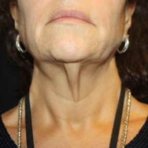 Before Photo - Facial Rejuvenation - Case #14103 - Facelift and Neck Lift - 58 year old female - Worm's Eye View