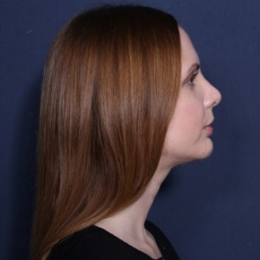 After Photo - Nose Surgery - Case #14115 - 29  years old female  - Lateral View