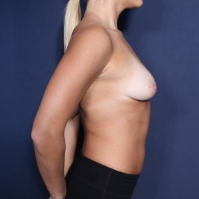 Before Photo - Breast Augmentation - Case #14134 - 26 Years Old Female - Lateral View