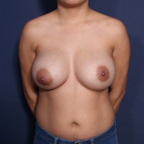After Photo - Breast Revision - Case #14136 - 28 Years old female - Frontal View