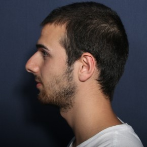 Before Photo - Nose Surgery - Case #14149 - 18 years old male - Lateral View