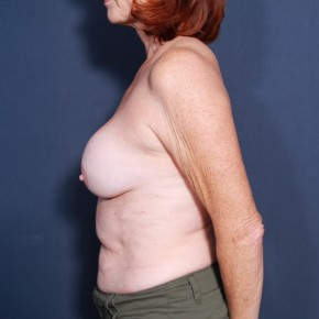 Before Photo - Breast Revision - Case #14151 - 62 years old female - Lateral View