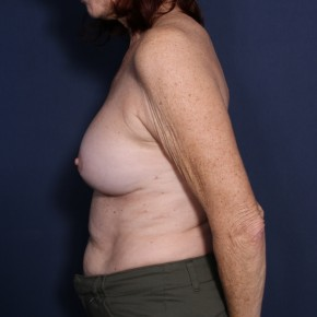 After Photo - Breast Revision - Case #14151 - 62 years old female - Lateral View