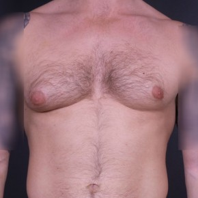 Before Photo - Gynecomastia - Case #14175 - Bilateral Liposuction with Excision for Gynecomastia - Frontal View