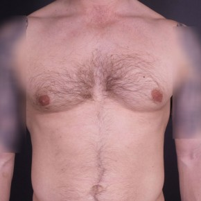 After Photo - Gynecomastia - Case #14175 - Bilateral Liposuction with Excision for Gynecomastia - Frontal View