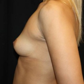 Before Photo - Breast Augmentation - Case #14275 - Breast Augmentation - 36 year old female - Lateral View