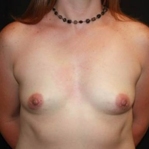 Before Photo - Breast Lift - Case #14276 - Breast Lift with Implants - 40 year old female - Frontal View