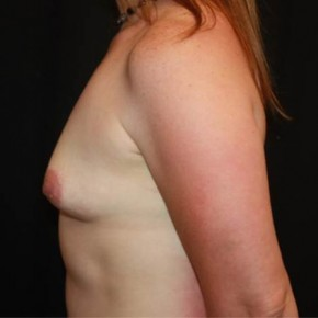 Before Photo - Breast Lift - Case #14276 - Breast Lift with Implants - 40 year old female - Lateral View