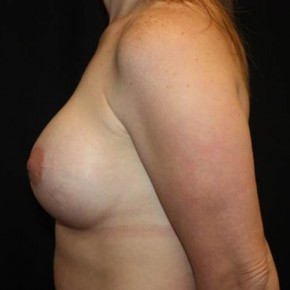 After Photo - Breast Lift - Case #14276 - Breast Lift with Implants - 40 year old female - Lateral View