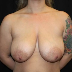 Before Photo - Breast Lift - Case #14277 - Breast Lift - 37 year old female - Frontal View