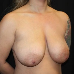 Before Photo - Breast Lift - Case #14277 - Breast Lift - 37 year old female - Oblique View