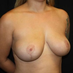 After Photo - Breast Lift - Case #14277 - Breast Lift - 37 year old female - Oblique View