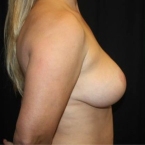 After Photo - Breast Lift - Case #14277 - Breast Lift - 37 year old female - Lateral View