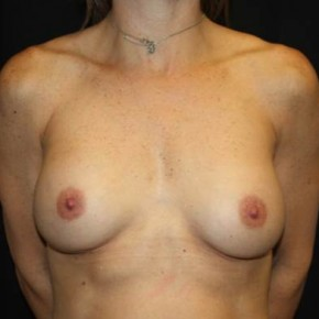 Before Photo - Breast Revision - Case #14278 - Implant Exchange - 43 year old female - Frontal View